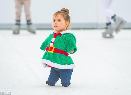 失去雙臂和雙腿的堅強女孩在冰上起舞