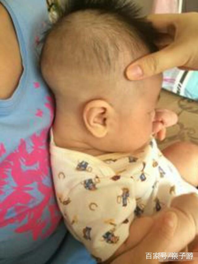 发型后脑勺睡扁了,v发型以后的颜色么?那你需头发染什么婴儿比较好图片