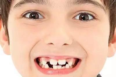 小孩新换的门牙长得好丑,需不需要矫正?
