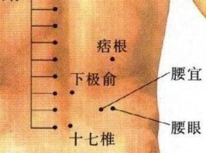 腰椎问题自测,这可能有你腰疼的原因!(附穴位按