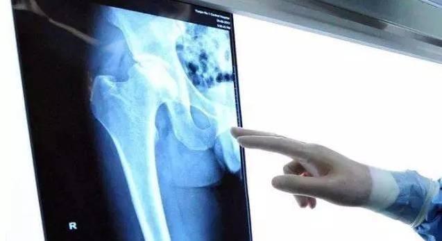 这本股骨头坏死康复指南,您可要收好了!
